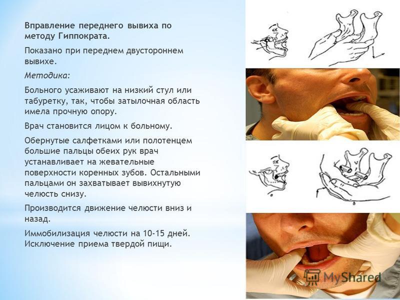 Как вправить челюсть самостоятельно описание способов