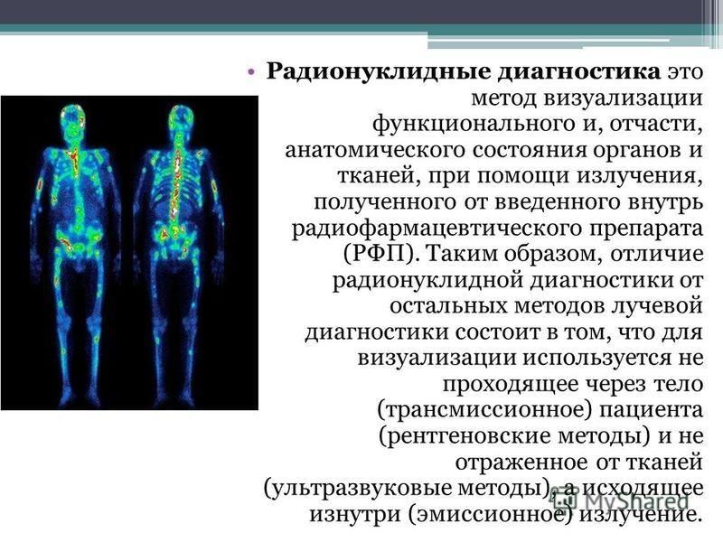 Радионуклидные диагностика это метод визуализации функционального и, отчасти, анатомического состояния органов и тканей, при помощи излучения, полученного от введенного внутрь радио фармацевтического препарата (РФП). Таким образом, отличие радионукли