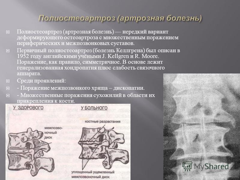 Полиостеоартроз ( артрозная болезнь ) нередкий вариант деформирующего остеоартроза с множественным поражением периферических и межпозвонковых суставов. Первичный полиостеоартроз ( болезнь Келлгрена ) был описан в 1952 году английскими учёными J. Kell
