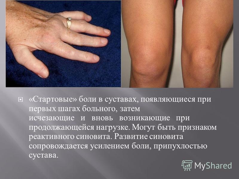 « Стартовые » боли в суставах, появляющиеся при первых шагах больного, затем исчезающие и вновь возникающие при продолжающейся нагрузке. Могут быть признаком реактивного синовита. Развитие синовита сопровождается усилением боли, припухлостью сустава.