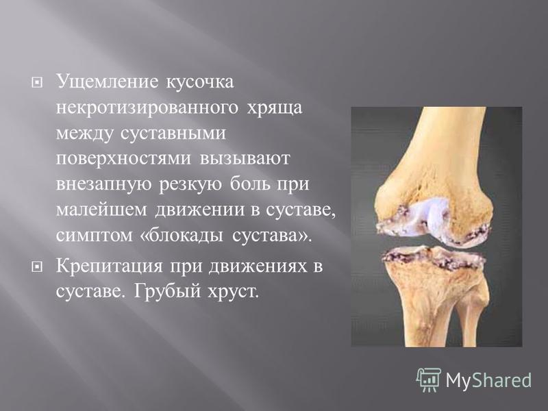Ущемление кусочка некротизированного хряща между суставными поверхностями вызывают внезапную резкую боль при малейшем движении в суставе, симптом « блокады сустава ». Крепитация при движениях в суставе. Грубый хруст.