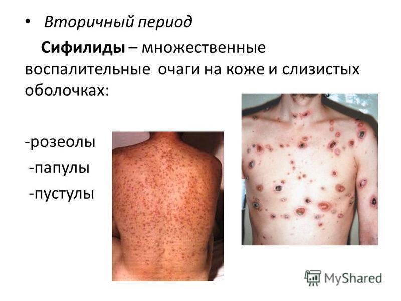 Вторичный период Сифилиды – множественные воспалительные очаги на коже и слизистых оболочках: -розеолы -папулы -пустулы