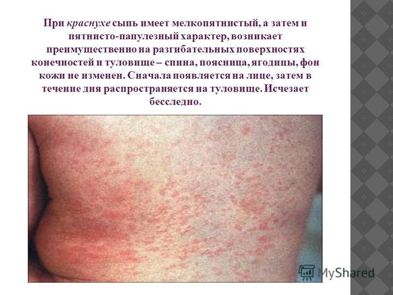 При краснухе сыпь имеет мелкопятнистый, а затем и пятнисто-папулезный характер, возникает преимущественно на разгибательных поверхностях конечностей и туловище – спина, поясница, ягодицы, фон кожи не изменен. Сначала появляется на лице, затем в течен