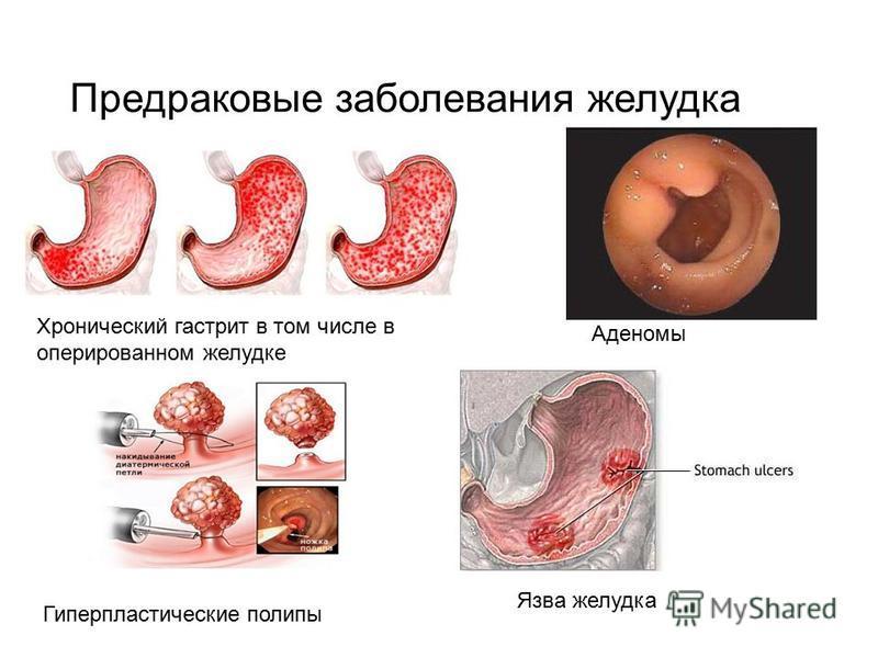 История болезни рак желудка