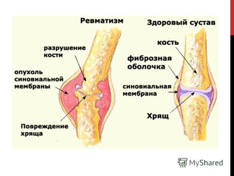 Детский суставной ревматизм зарядка при болях в тазобедренном суставе