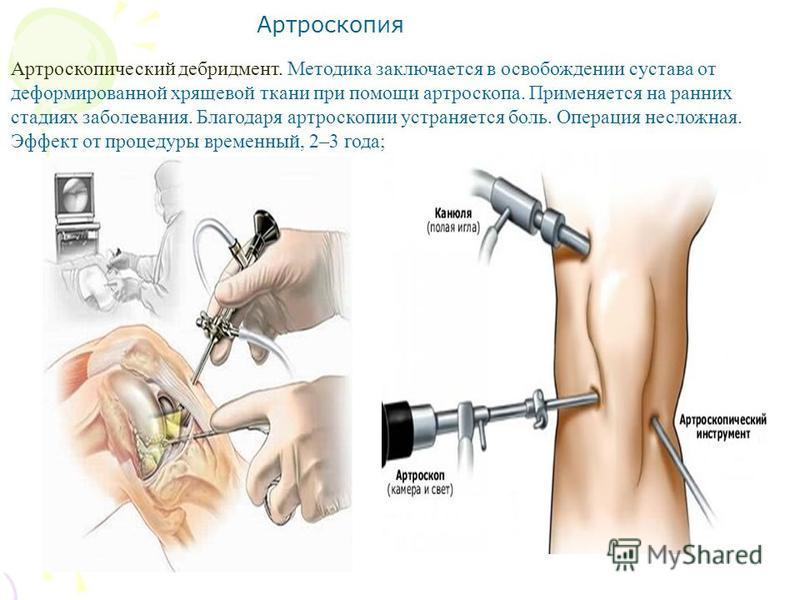 Углометрия суставов методика траволечение артрита суставов