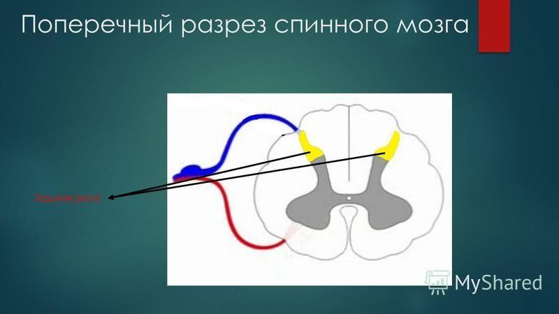 Поперечный разрез спинного мозга Задние рога
