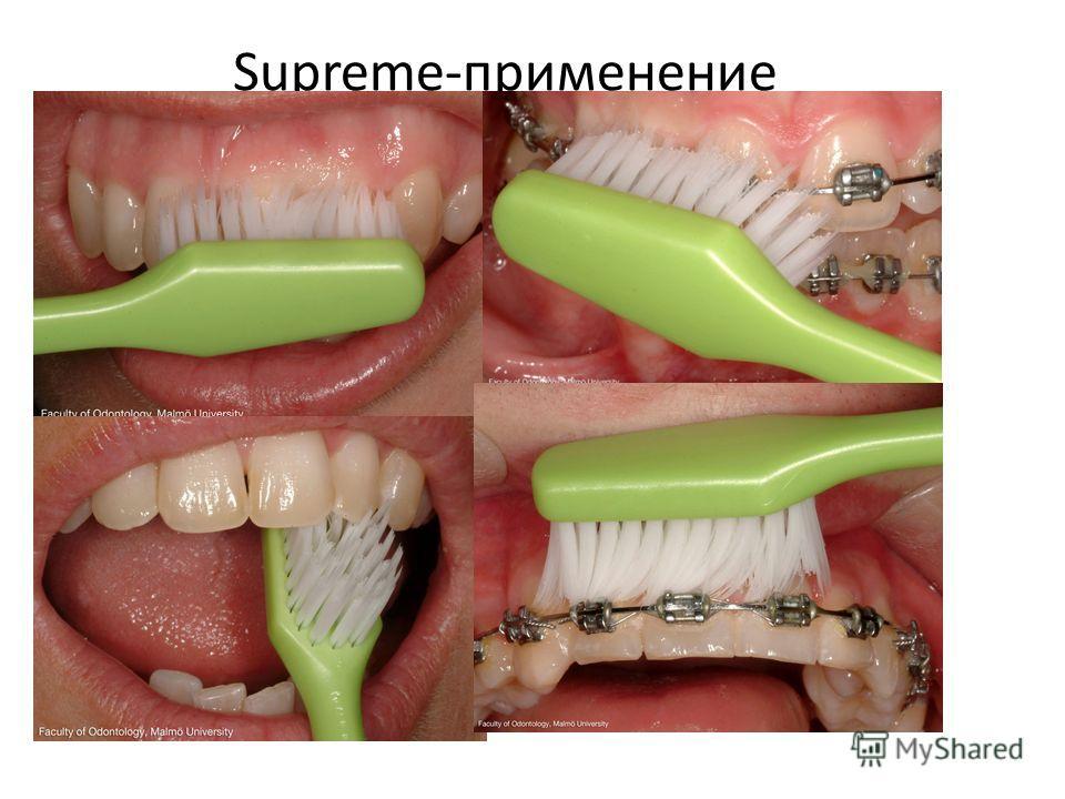 Supreme-применение