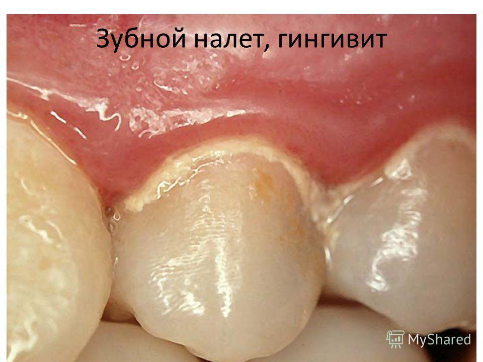 Зубной налет, гингивит
