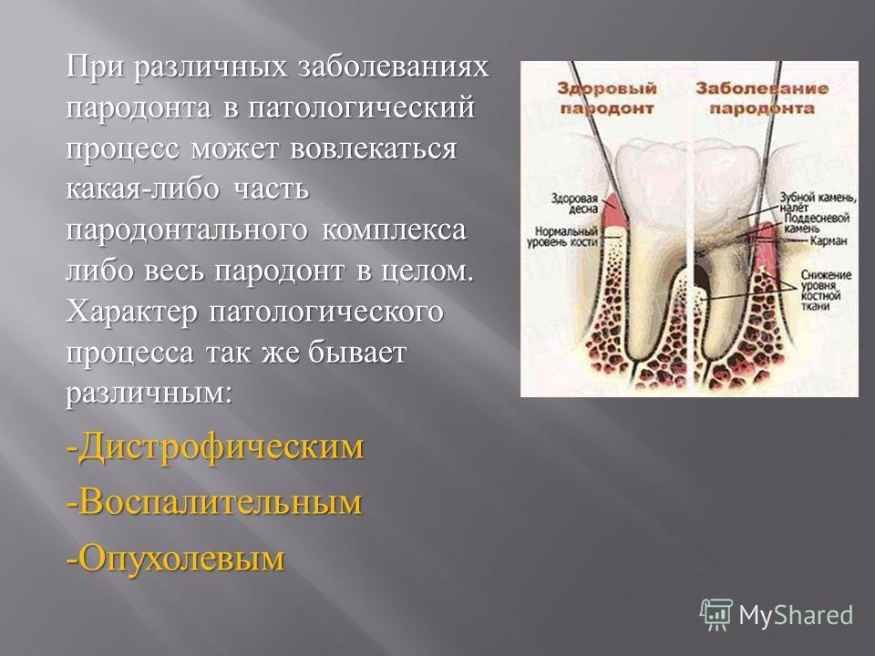 При различных заболеваниях пародонта в патологический процесс может вовлекаться какая - либо часть пародонтального комплекса либо весь пародонт в целом. Характер патологического процесса так же бывает различным : - Дистрофическим - Воспалительным - О