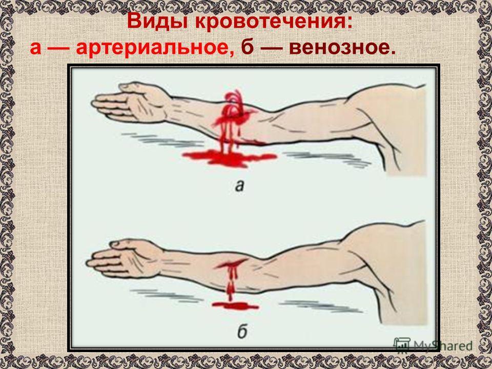 Виды кровотечения: а артериальное, б венозное.