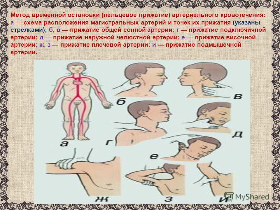 Метод временной остановки (пальцевое прижатие) артериального кровотечения: а схема расположения магистральных артерий и точек их прижатия (указаны стрелками); б, в прижатие общей сонной артерии; г прижатие подключичной артерии; д прижатие наружной че