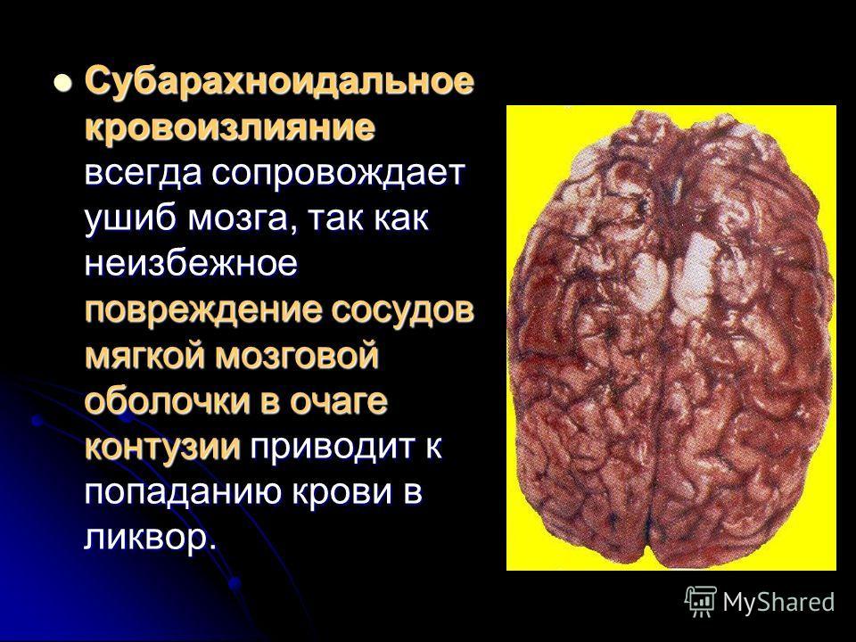Субарахноидальное кровоизлияние всегда сопровождает ушиб мозга, так как неизбежное повреждение сосудов мягкой мозговой оболочки в очаге контузии приводит к попаданию крови в ликвор. Субарахноидальное кровоизлияние всегда сопровождает ушиб мозга, так