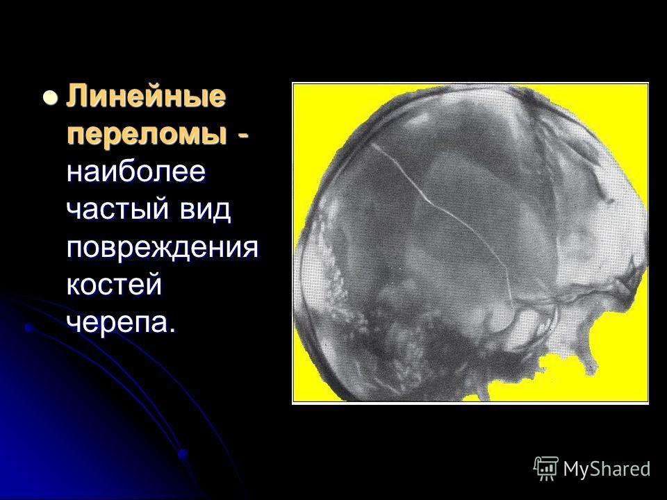 Линейные переломы - наиболее частый вид повреждения костей черепа. Линейные переломы - наиболее частый вид повреждения костей черепа.