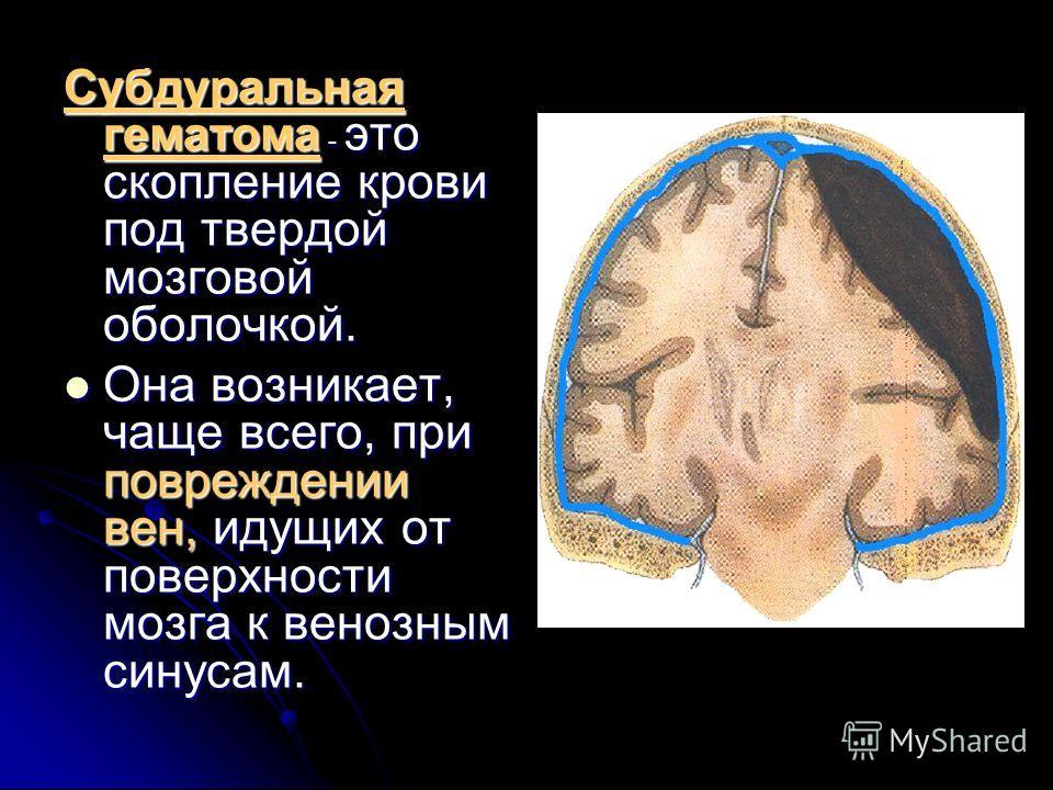 Субдуральная гематома - это скопление крови под твердой мозговой оболочкой. Она возникает, чаще всего, при повреждении вен, идущих от поверхности мозга к венозным синусам. Она возникает, чаще всего, при повреждении вен, идущих от поверхности мозга к