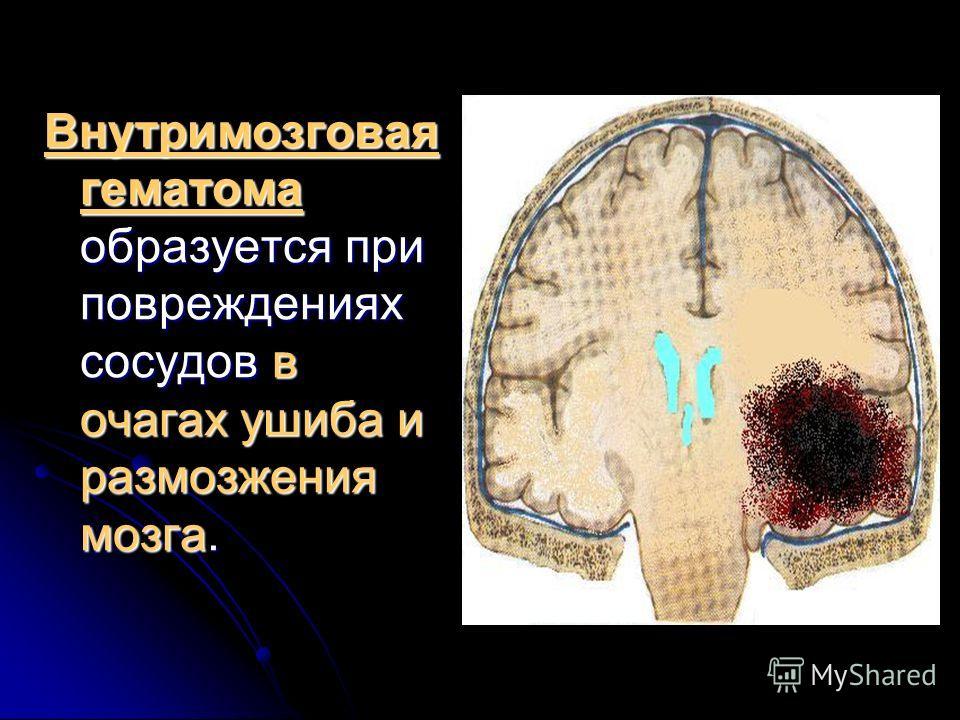 Внутримозговая гематома образуется при повреждениях сосудов в очагах ушиба и размозжения мозга.