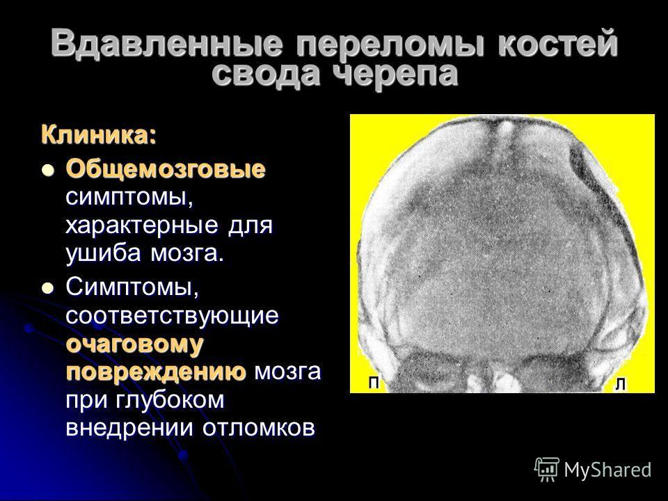 Вдавленные переломы костей свода черепа Клиника: Общемозговые симптомы, характерные для ушиба мозга. Общемозговые симптомы, характерные для ушиба мозга. Симптомы, соответствующие очаговому повреждению мозга при глубоком внедрении отломков Симптомы, с