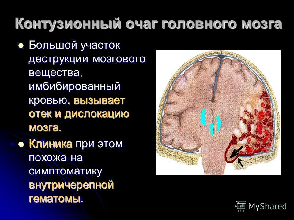 Контузионный очаг головного мозга Большой участок деструкции мозгового вещества, имбибированный кровью, вызывает отек и дислокацию мозга. Большой участок деструкции мозгового вещества, имбибированный кровью, вызывает отек и дислокацию мозга. Клиника