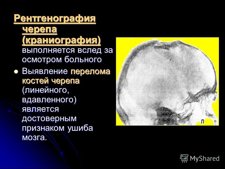 Рентгенография черепа (краниография) выполняется вслед за осмотром больного Выявление перелома костей черепа (линейного, вдавленного) является достоверным признаком ушиба мозга. Выявление перелома костей черепа (линейного, вдавленного) является досто