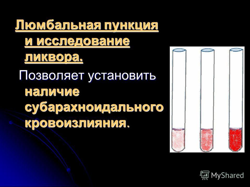 Люмбальная пункция и исследование ликвора. Позволяет установить наличие субарахноидального кровоизлияния. Позволяет установить наличие субарахноидального кровоизлияния.