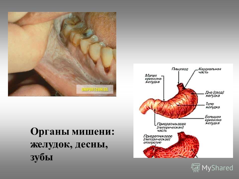 Органы мишени: желудок, десны, зубы