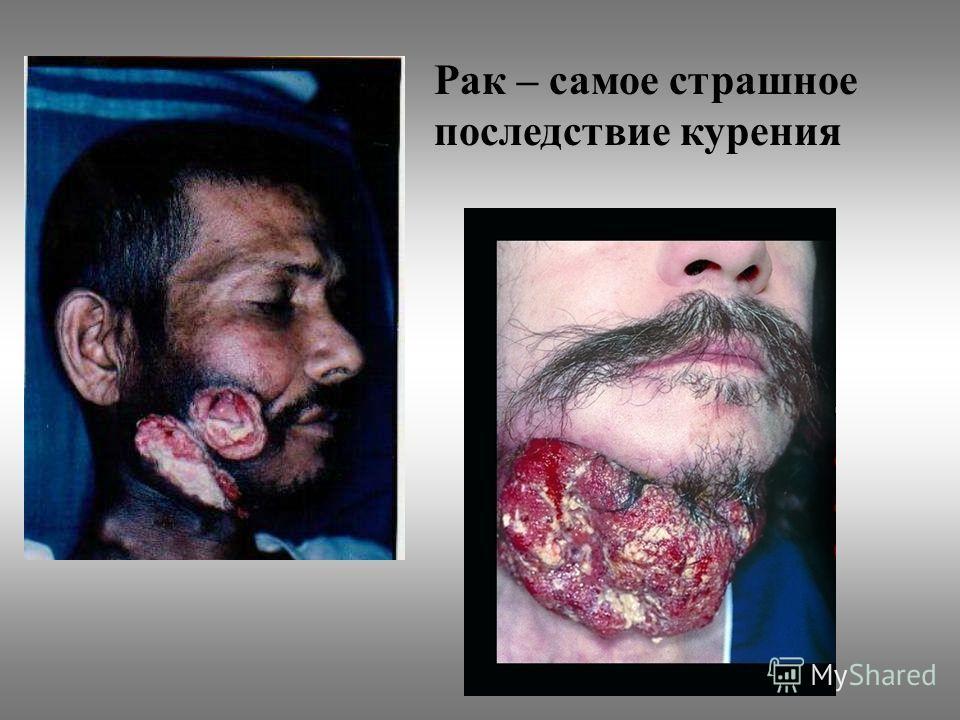 Рак – самое страшное последствие курения