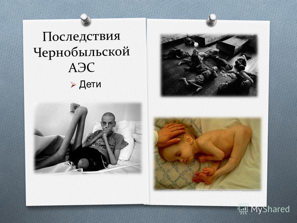 Последствия Чернобыльской АЭС Дети