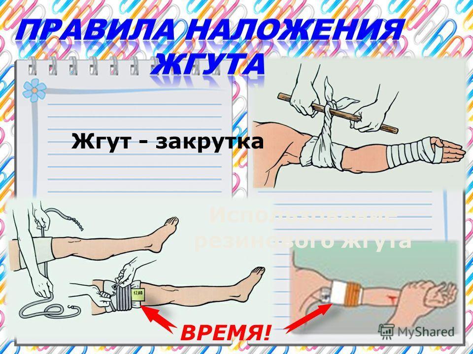 Жгут - закрутка Использование резинового жгута ВРЕМЯ!