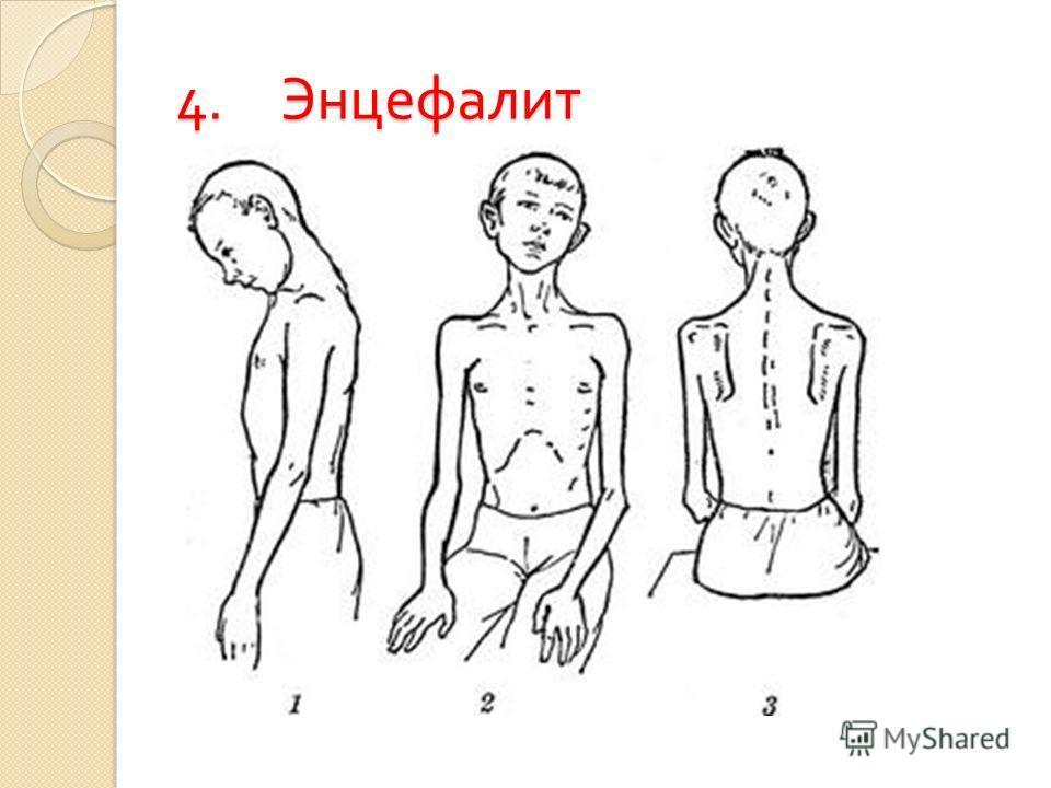 4. Энцефалит