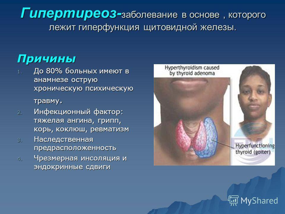 Гипертиреоз- заболевание в основе, которого лежит гиперфункция щитовидной железы. Причины 1. До 80% больных имеют в анамнезе острую хроническую психическую травму. 2. Инфекционный фактор: тяжелая ангина, грипп, корь, коклюш, ревматизм 3. Наследственн