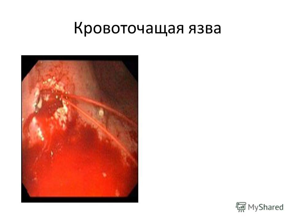 Кровоточащая язва