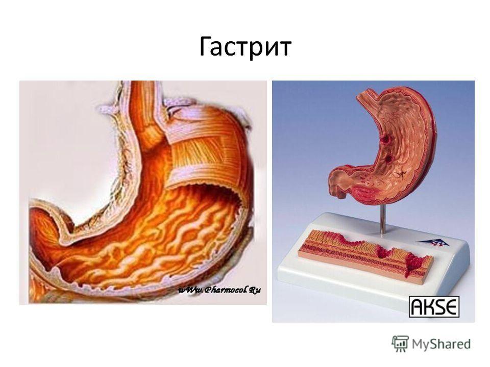 Гастрит симптомы и лечение признаки гастрита желудка