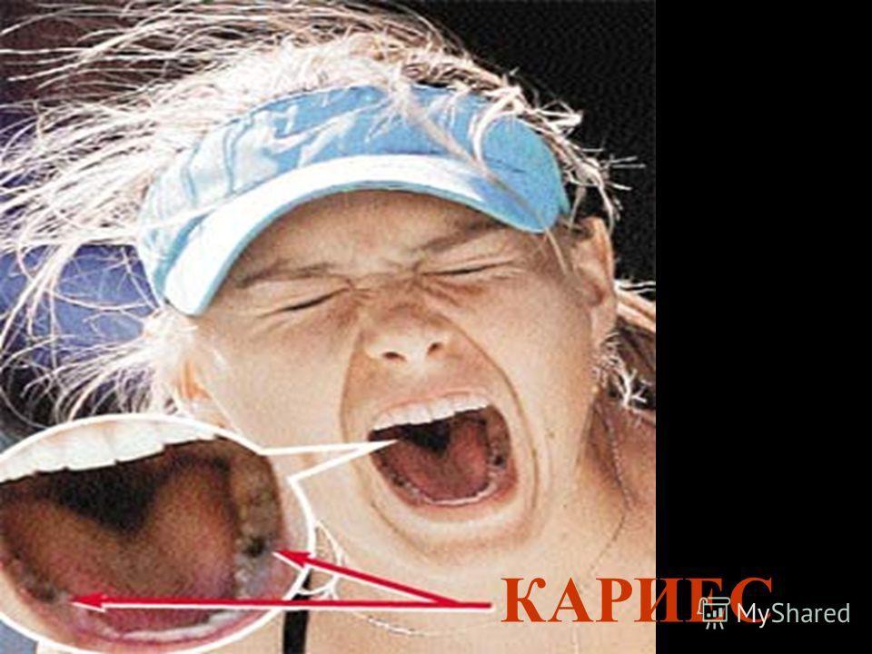 Кариес- это разрушение твердых тканей зуба, ведущих к образованию полости (дырки).