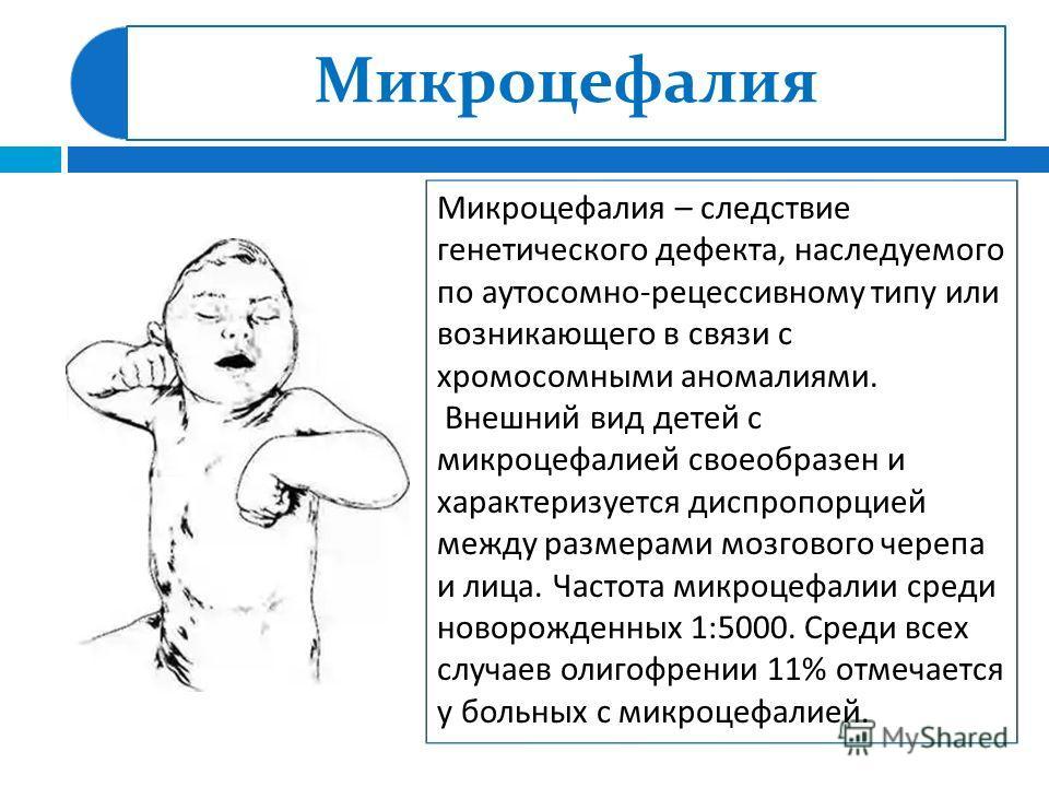 Микроцефалия Микроцефалия – следствие генетического дефекта, наследуемого по аутосомно - рецессивному типу или возникающего в связи с хромосомными аномалиями. Внешний вид детей с микроцефалией своеобразен и характеризуется диспропорцией между размера