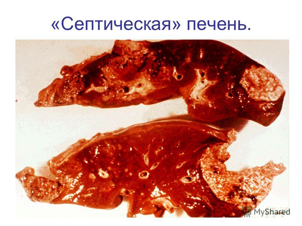 «Септическая» печень.