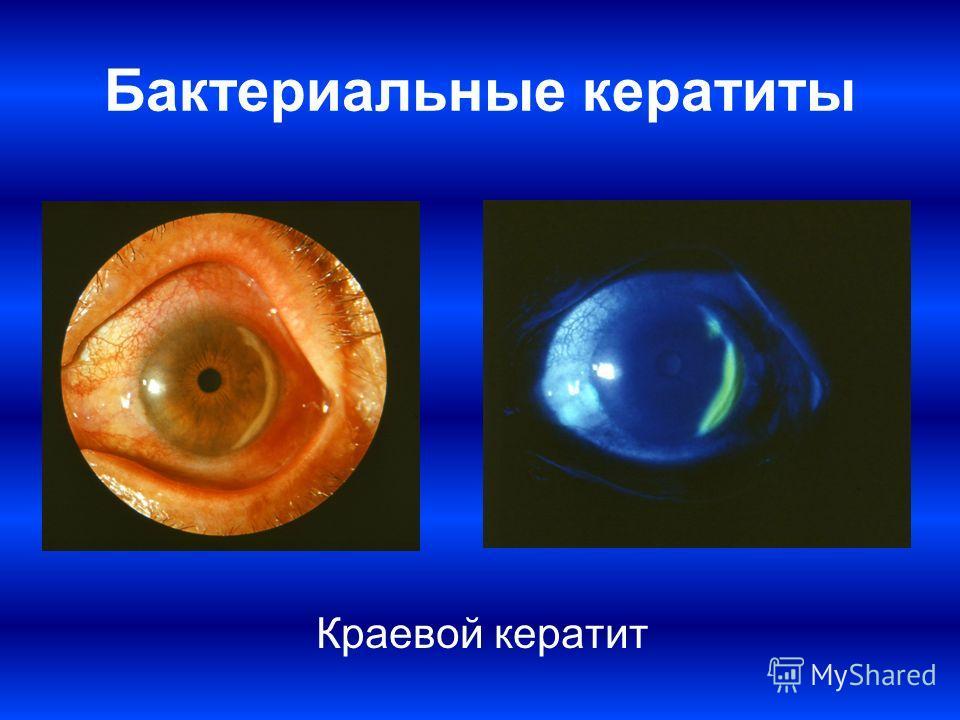Бактериальные кератиты Краевой кератит