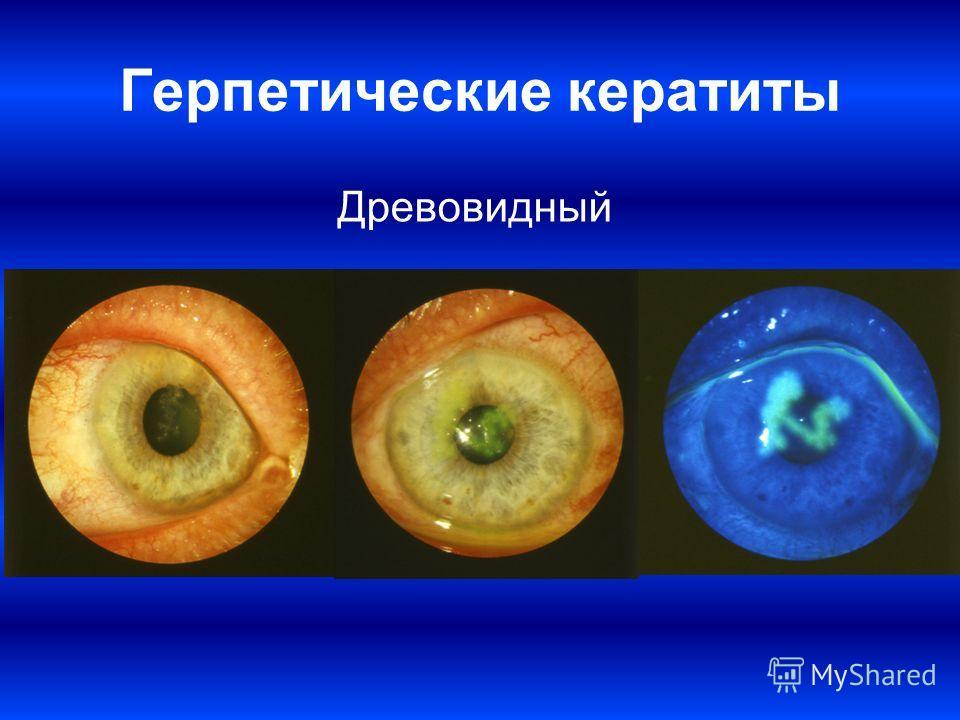 Герпетические кератиты Древовидный
