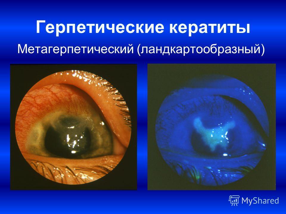 Герпетические кератиты Метагерпетический (ландкартообразный)
