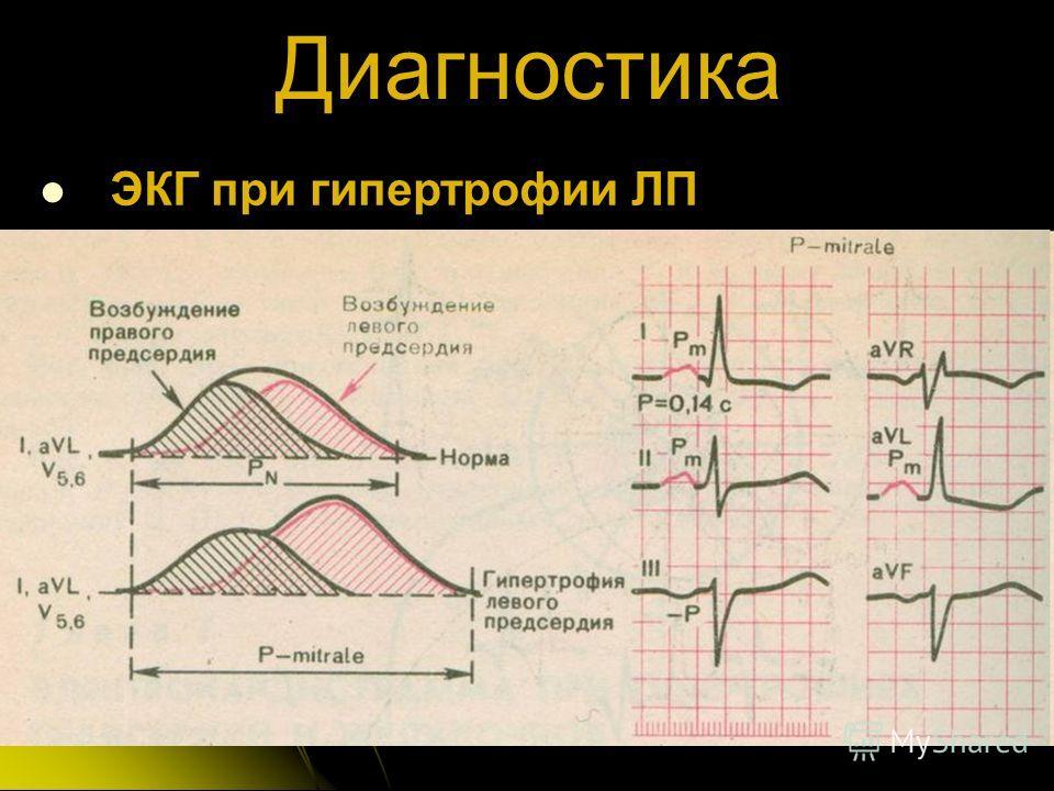 Диагностика ЭКГ при гипертрофии ЛП