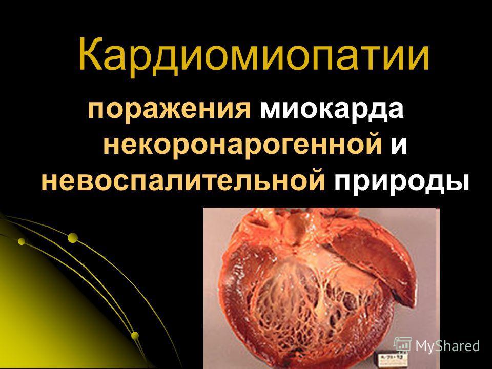 Кардиомиопатии поражения миокарда некоронарогенной и невоспалительной природы