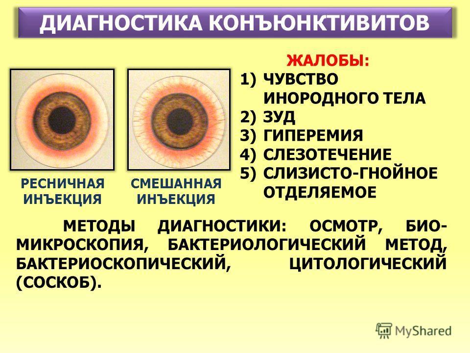 ДИАГНОСТИКА КОНЪЮНКТИВИТОВ РЕСНИЧНАЯ ИНЪЕКЦИЯ СМЕШАННАЯ ИНЪЕКЦИЯ ЖАЛОБЫ: 1)ЧУВСТВО ИНОРОДНОГО ТЕЛА 2)ЗУД 3)ГИПЕРЕМИЯ 4)СЛЕЗОТЕЧЕНИЕ 5)СЛИЗИСТО-ГНОЙНОЕ ОТДЕЛЯЕМОЕ МЕТОДЫ ДИАГНОСТИКИ: ОСМОТР, БИО- МИКРОСКОПИЯ, БАКТЕРИОЛОГИЧЕСКИЙ МЕТОД, БАКТЕРИОСКОПИЧЕС