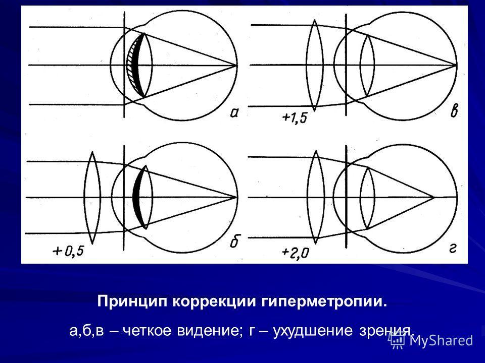 Принцип коррекции гиперметропии. а,б,в – четкое видение; г – ухудшение зрения.