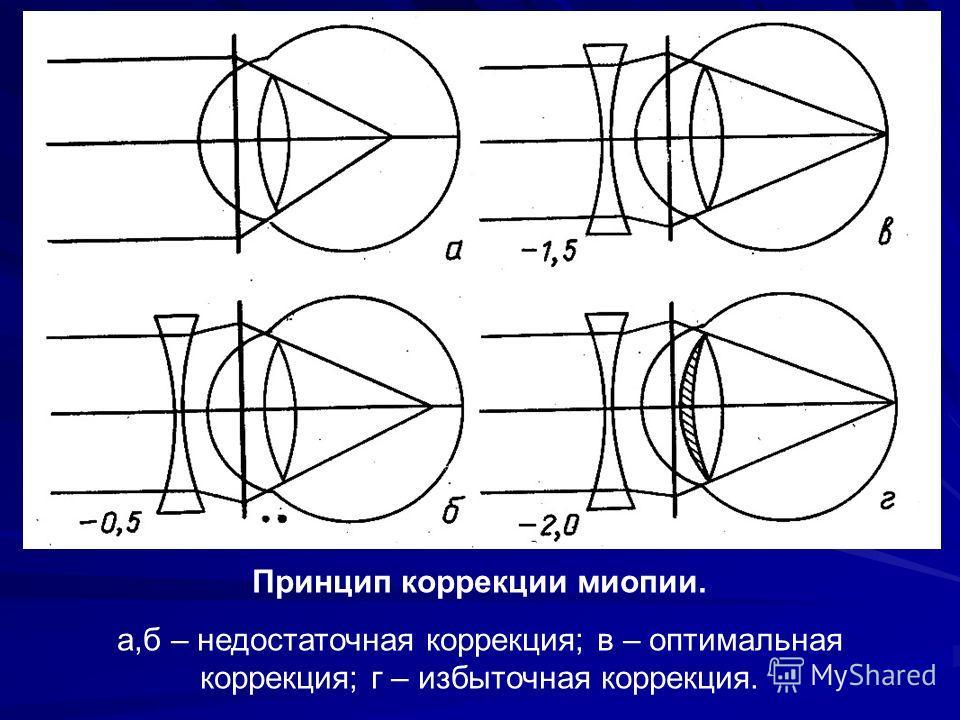 Принцип коррекции миопии. а,б – недостаточная коррекция; в – оптимальная коррекция; г – избыточная коррекция.
