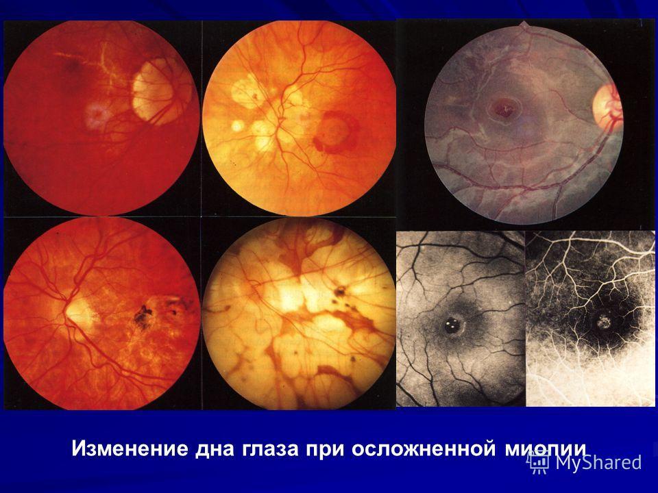 Изменение дна глаза при осложненной миопии