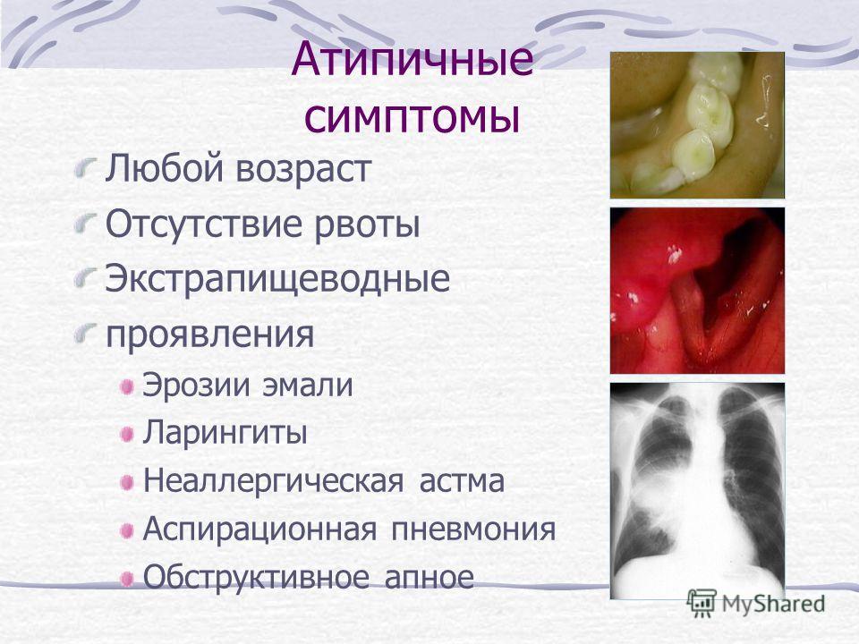 Атипичные симптомы Любой возраст Отсутствие рвоты Экстрапищеводные проявления Эрозии эмали Ларингиты Неаллергическая астма Аспирационная пневмония Обструктивное апное
