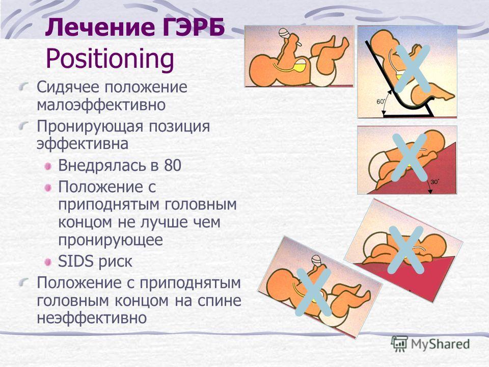 Лечение ГЭРБ Positioning Сидячее положение малоэффективно Пронирующая позиция эффективна Внедрялась в 80 Положение с приподнятым головным концом не лучше чем пронирующее SIDS риск Положение с приподнятым головным концом на спине неэффективно X X X X