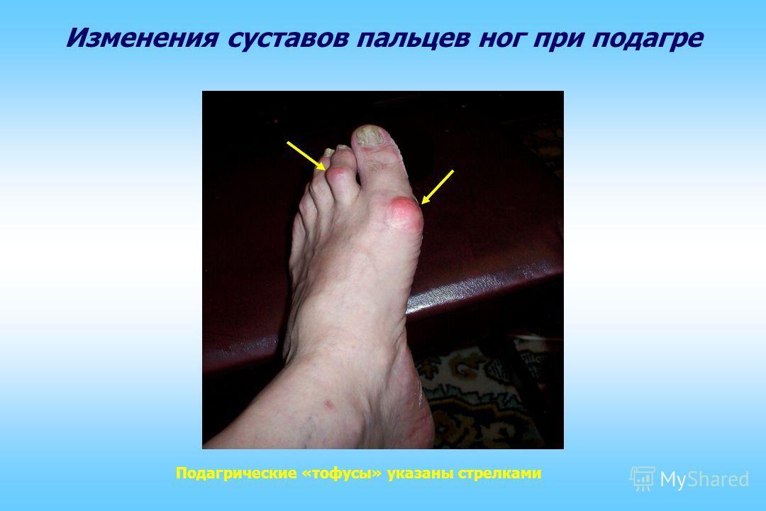 Изменения суставов пальцев рук при подагре Подагрические «тофусы» указаны стрелками