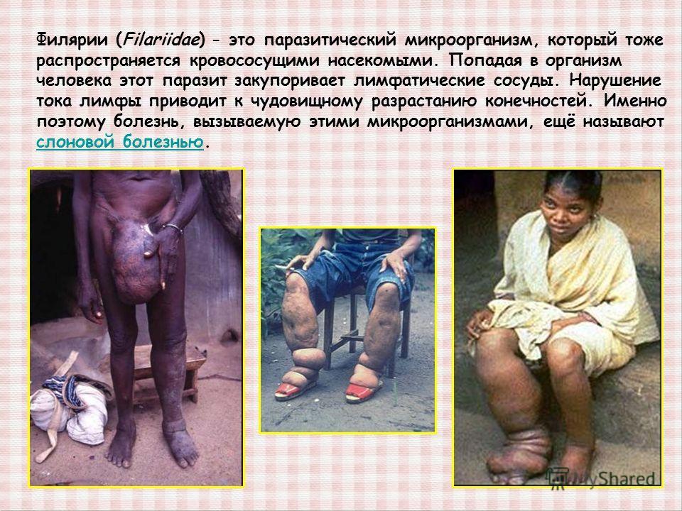 Филярии (Filariidae) - это паразитический микроорганизм, который тоже распространяется кровососущими насекомыми. Попадая в организм человека этот паразит закупоривает лимфатические сосуды. Нарушение тока лимфы приводит к чудовищному разрастанию конеч