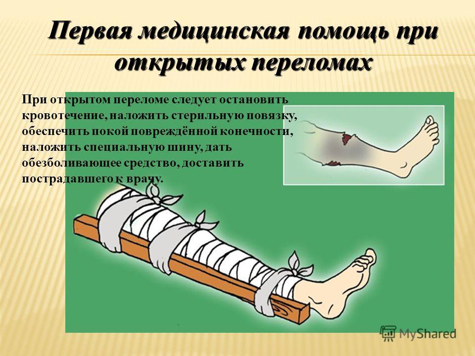Первая медицинская помощь при открытых переломах При открытом переломе следует остановить кровотечение, наложить стерильную повязку, обеспечить покой повреждённой конечности, наложить специальную шину, дать обезболивающее средство, доставить пострада
