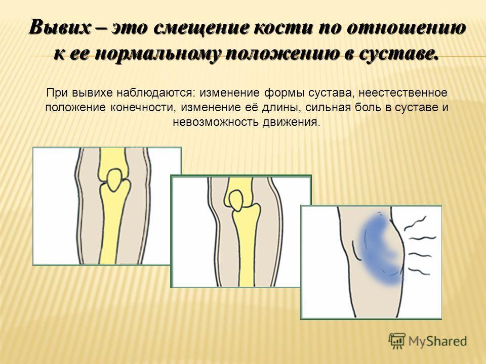 Вывих – это смещение кости по отношению к ее нормальному положению в суставе. При вывихе наблюдаются: изменение формы сустава, неестественное положение конечности, изменение её длины, сильная боль в суставе и невозможность движения.